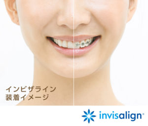 invisalign_img_sp (1)