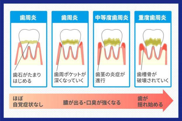 periodontal-disease-2-1024x683