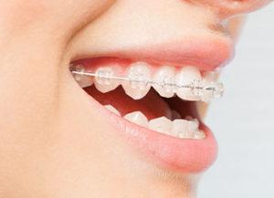 orthodontics03-01